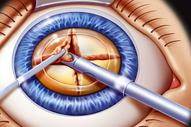 Cataract surgery: surgical fee non-toric